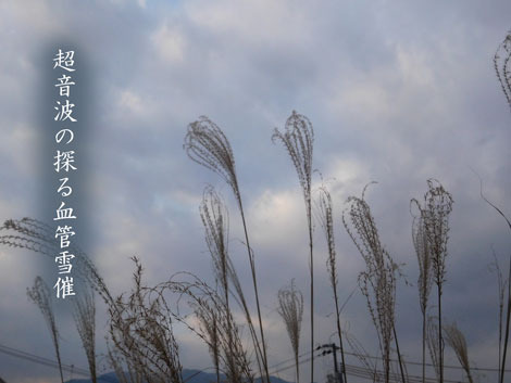 yukimoyoi20190110.jpg